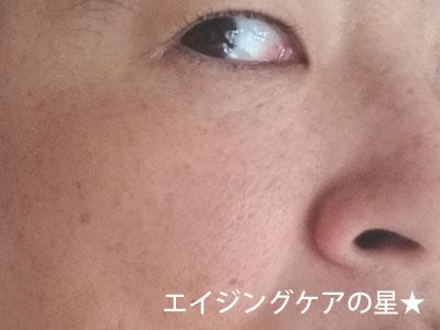 【使用前】米肌の美白「澄肌美白」