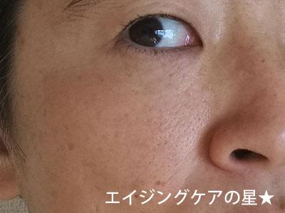 【使用17日目】米肌の美白「澄肌美白」