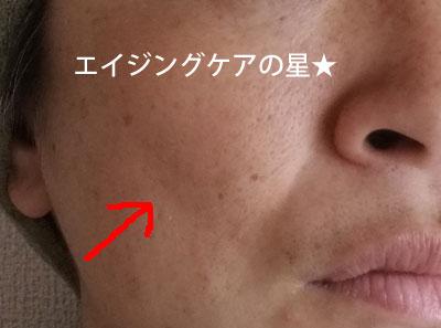 ▼【使用前】フロービキープストラクチャーゲル