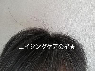 守り髪【約1年間】使用後