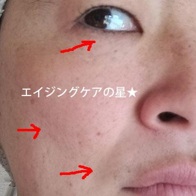 【使用前】アスタリフト
