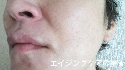 BBクリーム エンリッチリフト [多機能ファンデーション] の口コミレビュー