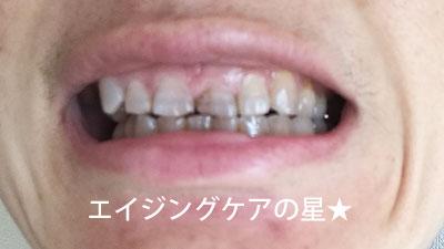 「ププレ 歯のマニュキュア」のホワイトニング効果は?