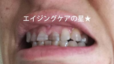 4.[ププレ]歯のマニキュアの落とし方