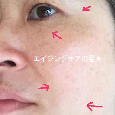 【サエル使用15日目】のシミ・くすみ