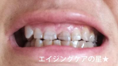 ▼美歯口【使用前】