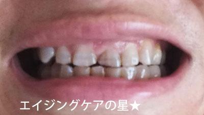 ▼美歯口【使用44日目】