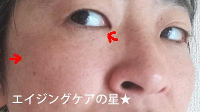 ▼【使用前】ブランホワイト