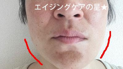 ▼【10分間リフティング後】ロックリーン