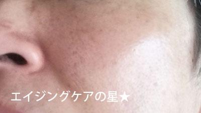 ▼【使用前】[無印良品]エイジングケア オールインワンジェル