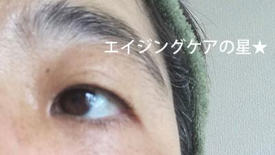 【使用後】四季彩 SLKコンセントレートエッセンス