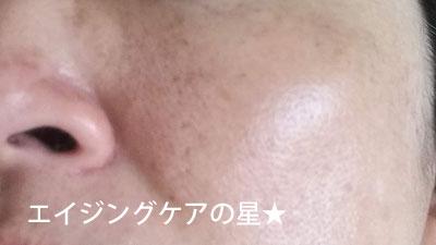 ▼【使用24日目】[無印良品]エイジングケア オールインワンジェル