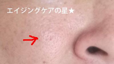 オラクル化粧品【使用前】